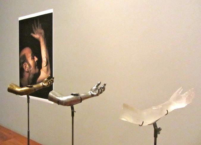 Stelarc, Ear on arm, cast glass, bronze, aluminium